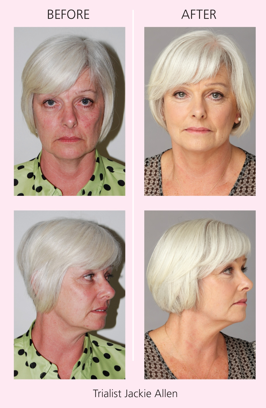 pics-moving-photo-facial-before-and-after-picture