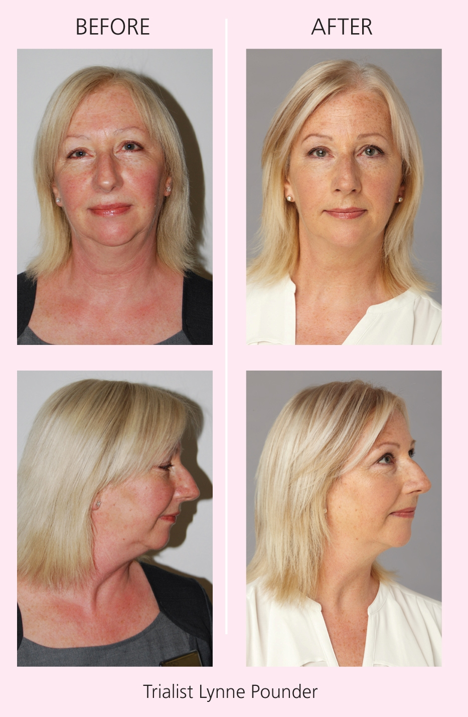 Facial Flex before and after images