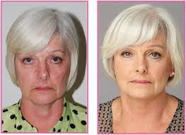 Rosemary connelly facial